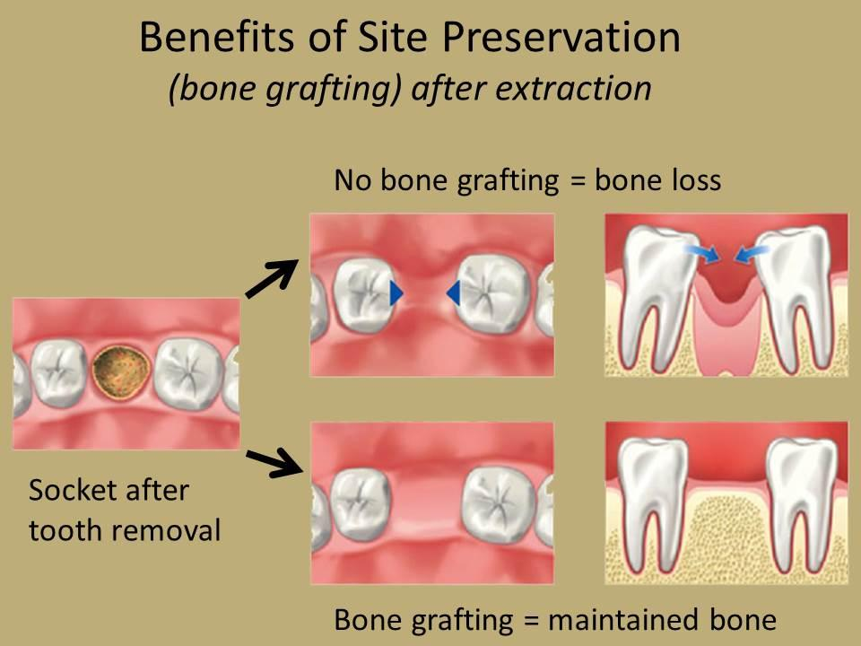 Socket Preservation & Bone Grafting