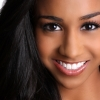Put Your Best Smile Forward with Invisalign